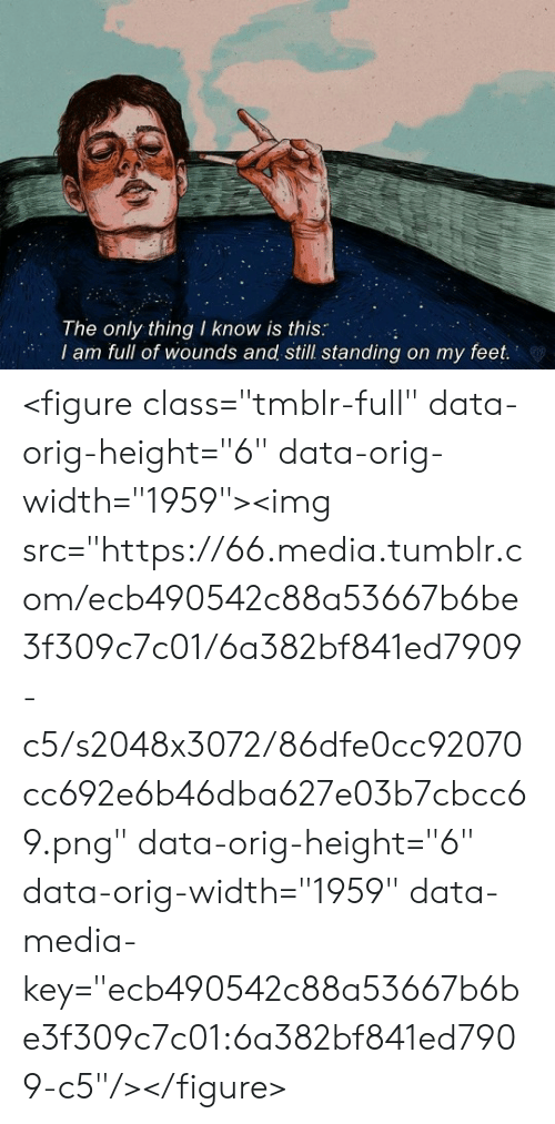 "Tumblr, Feet, and Media: The only thing I know is this:  I am full of wounds and still.standing on my feet  S. <figure class=""tmblr-full"" data-orig-height=""6"" data-orig-width=""1959""><img src=""https://66.media.tumblr.com/ecb490542c88a53667b6be3f309c7c01/6a382bf841ed7909-c5/s2048x3072/86dfe0cc92070cc692e6b46dba627e03b7cbcc69.png"" data-orig-height=""6"" data-orig-width=""1959"" data-media-key=""ecb490542c88a53667b6be3f309c7c01:6a382bf841ed7909-c5""/></figure>"