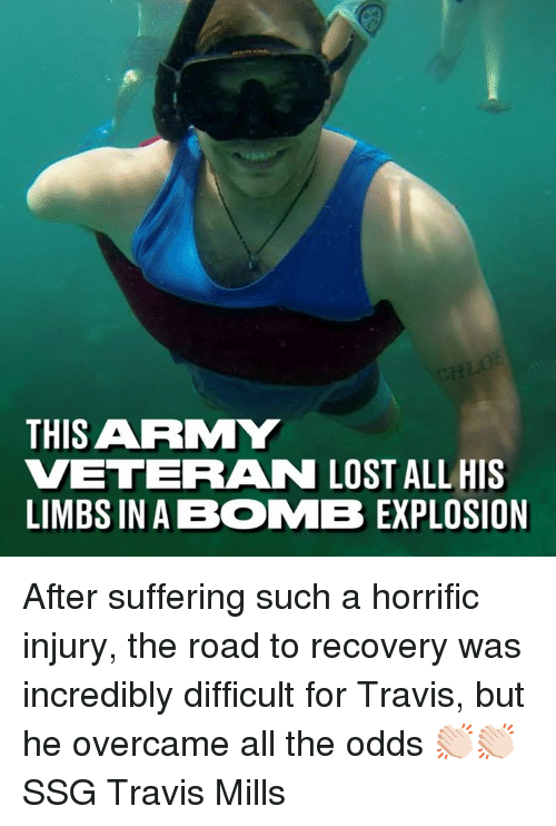 Dank, Lost, and Army: THIS ARMY  VETERAN LOST ALL HIS  LIMBS IN A BOMB EXPLOSION After suffering such a horrific injury, the road to recovery was incredibly difficult for Travis, but he overcame all the odds 👏🏻👏🏻  SSG Travis Mills