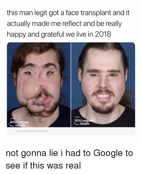 Google, Happy, and Live: this man legit got a face transplant and it  actually made me reflect and be really  happy and grateful we live in 2018  NYU Lang  NYULangone  Health  Health  NYU LANGONE HEALTH not gonna lie i had to Google to see if this was real