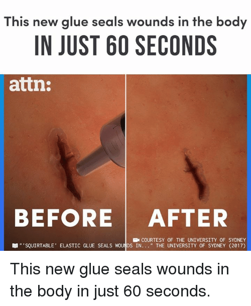 "Memes, 🤖, and Sydney: This new glue seals wounds in the body  IN JUST 60 SECONDS  attn:  BEFORE AFTER  COURTESY OF THE UNIVERSITY OF SYDNEY  眼""'SQUIRTABLE, ELASTIC GLUE SEALS WOU DS IN "" THE UNIVERSITY OF SYDNEY (2017) This new glue seals wounds in the body in just 60 seconds."