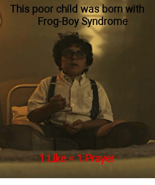 This Poor Child Was Born With Frog-Boy Syndrome 1 LIke 1