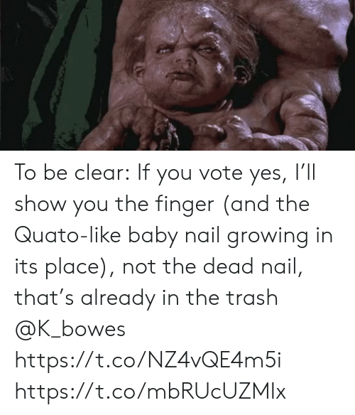 Memes, Trash, and Baby: To be clear: If you vote yes, I'll show you the finger (and the Quato-like baby nail growing in its place), not the dead nail, that's already in the trash @K_bowes https://t.co/NZ4vQE4m5i https://t.co/mbRUcUZMIx