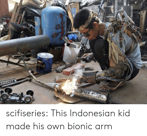Tumblr, Blog, and Com: UNIVERS scifiseries:  This Indonesian kid made his own bionic arm