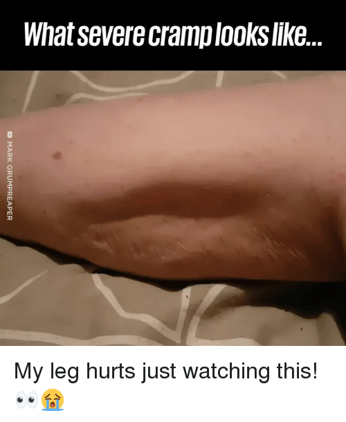 Just Watching: What severe cramplooks like.. My leg hurts just watching this! 👀😭