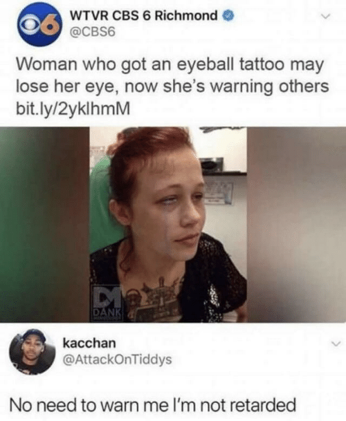 Dank, Retarded, and Cbs: WTVR CBS 6 Richmond  @CBS6  Woman who got an eyeball tattoo may  lose her eye, now she's warning others  bit.ly/2yklhmM  DANK  kacchan  @AttackOnTiddys  No need to warn me I'm not retarded